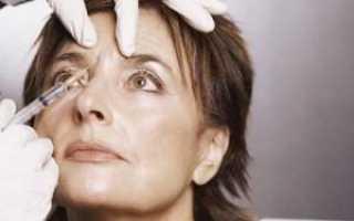 Прочь, морщины: как ботокс помогает разгладить кожу под глазами и есть ли у процедуры противопоказания?