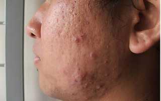 Фото угревой сыпи на лице: причины возникновения и лечение