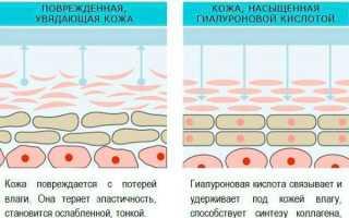 Инъекции ботокса в носогубные складки