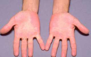 От чего руки пышут жаром